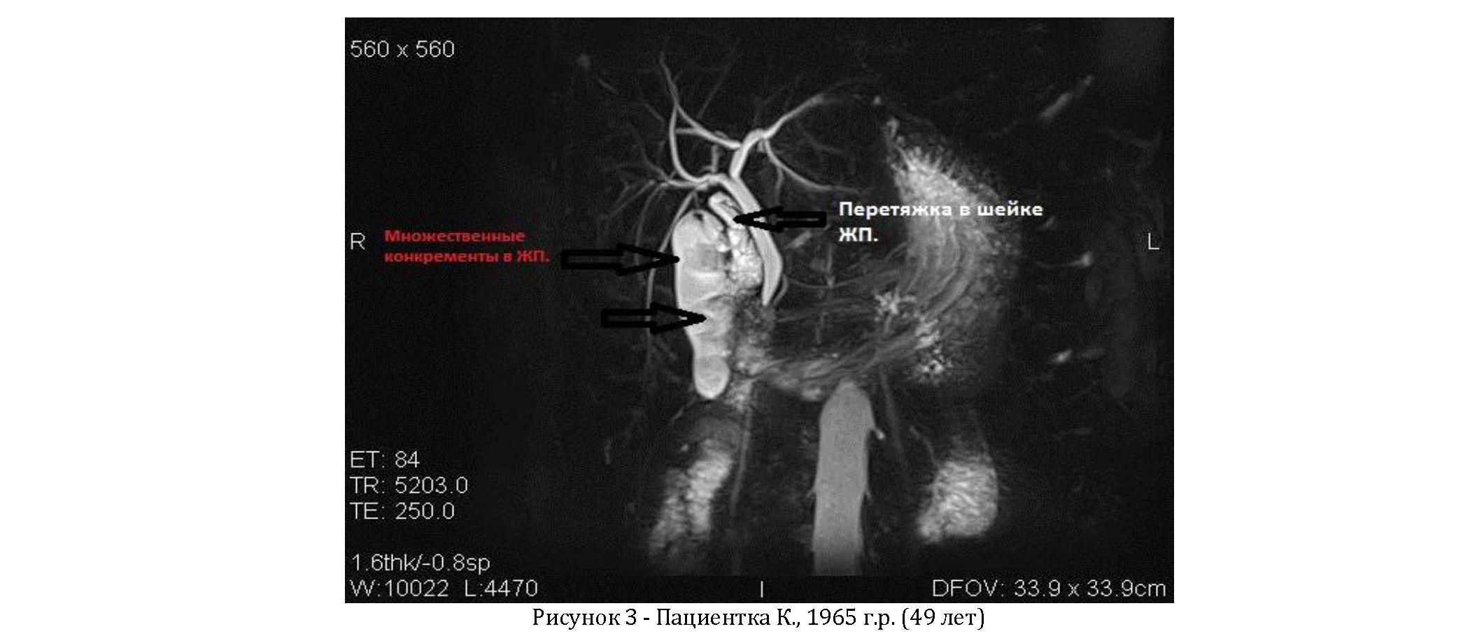 Проведение процедуры мрхпг. магнитно-резонансная холангиопанкреатография - мрхпг подготовка к проведению мрхпг