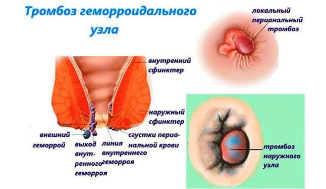 Внутренний геморрой: лечение, причины и симптомы заболевания