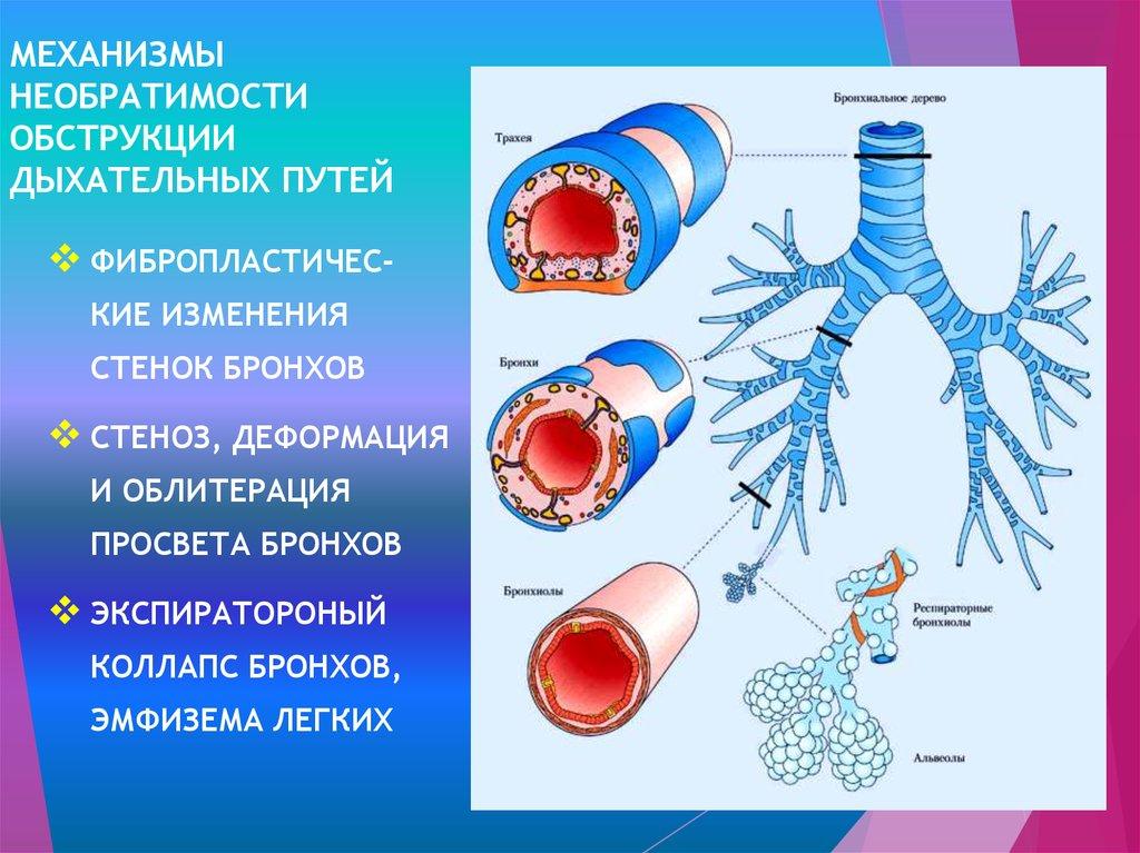 Обструкция дыхательных путей — википедия. что такое обструкция дыхательных путей