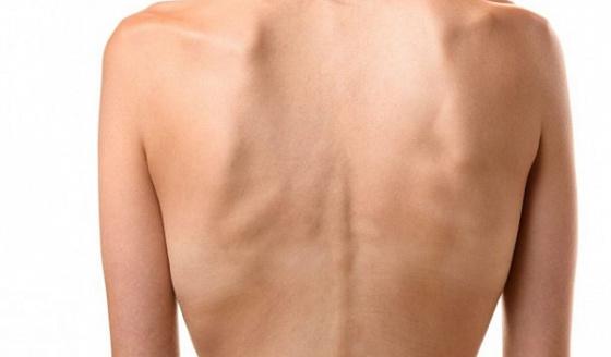 Кахексия – причины, лечение, симптомы, типы, диагностика