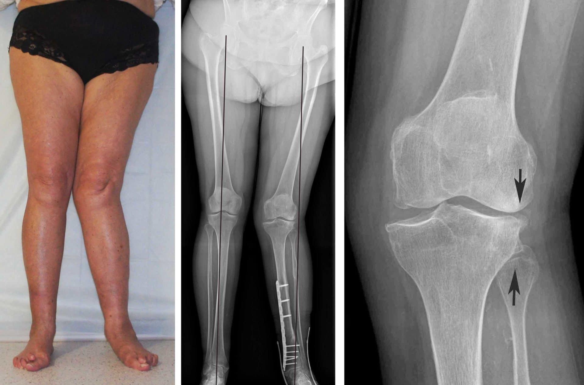 Гонартроз 2 степени коленного сустава - лечение медикаментозными и народными средствами, диетой и гимнастикой