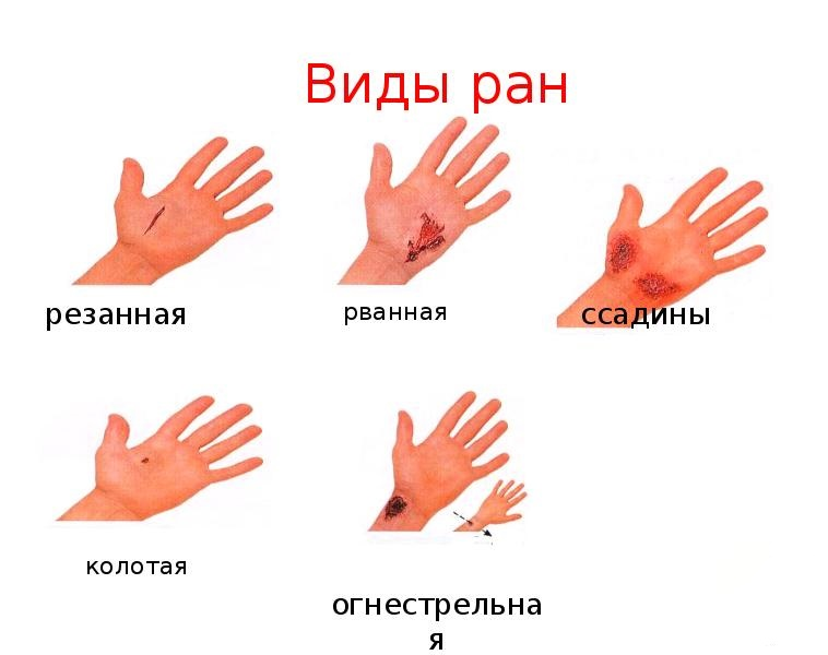 Раны / виды ранений