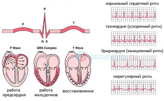 Ускоренный синусовый ритм сердца что это такое — сердце