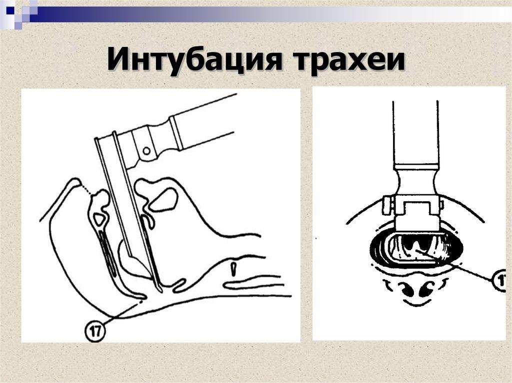 Интубация трахеи