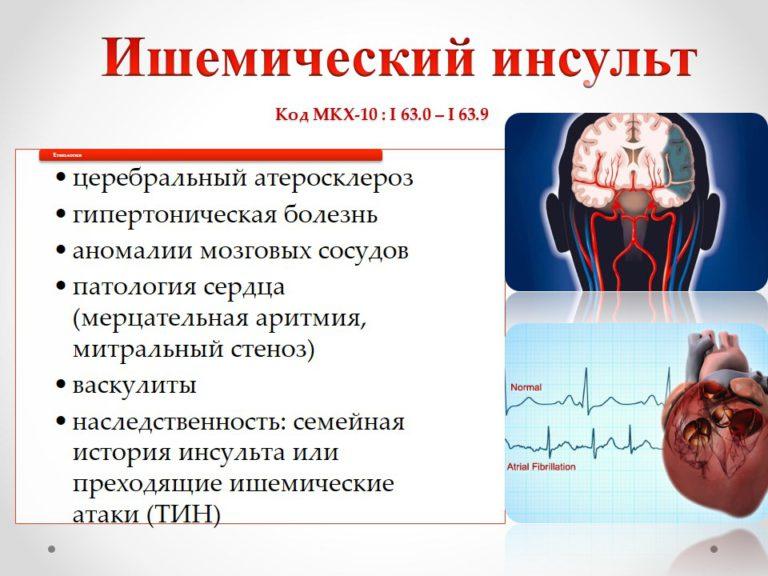 Ишемический инсульт головного мозга — последствия, прогноз и лечение