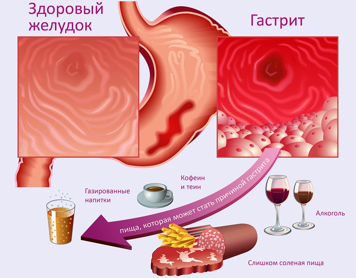 Острый гастрит желудка у взрослых (реактивный): симптомы и лечение