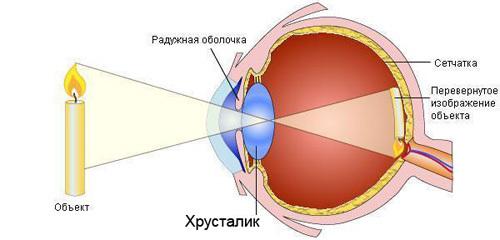 Лучшие хрусталики для глаз при катаракте
