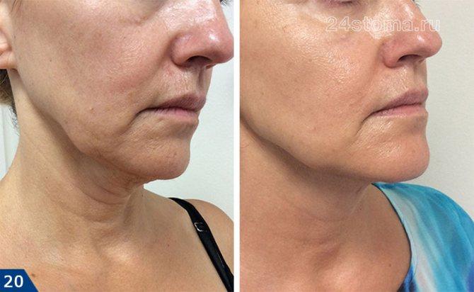 Подтяжка лица: что такое фейслифтинг, его виды, фото, плюсы и минусы, а также как делают эту пластическую операцию на коже?