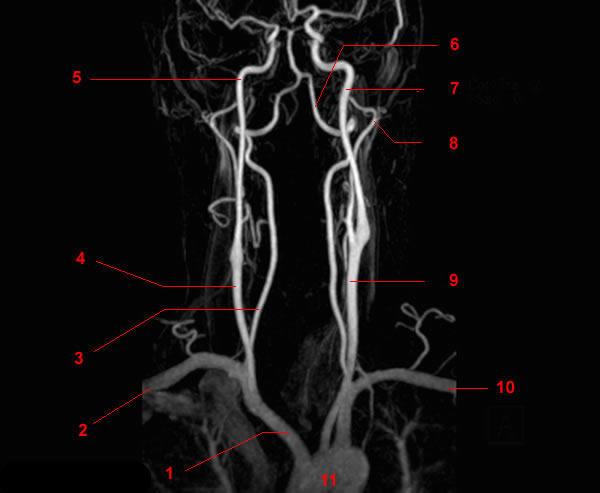 Что такое ангиография сосудов головного мозга, показания и ход процедуры