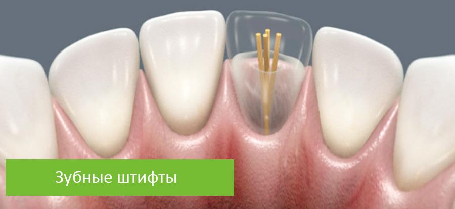 Штифт в зуб: что это такое и какой лучше - стекловолоконный, анкерный или металлический? | spacream.ru