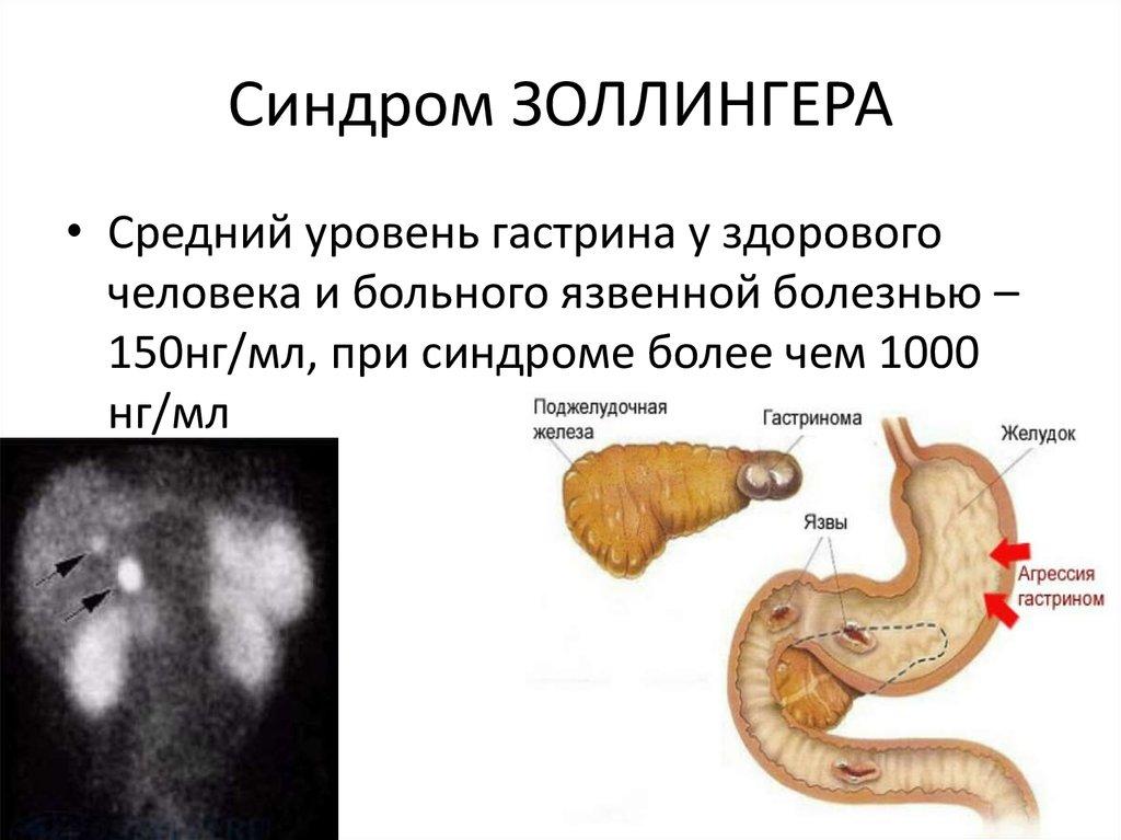Синдром золлингера эллисона: симптомы, лечение