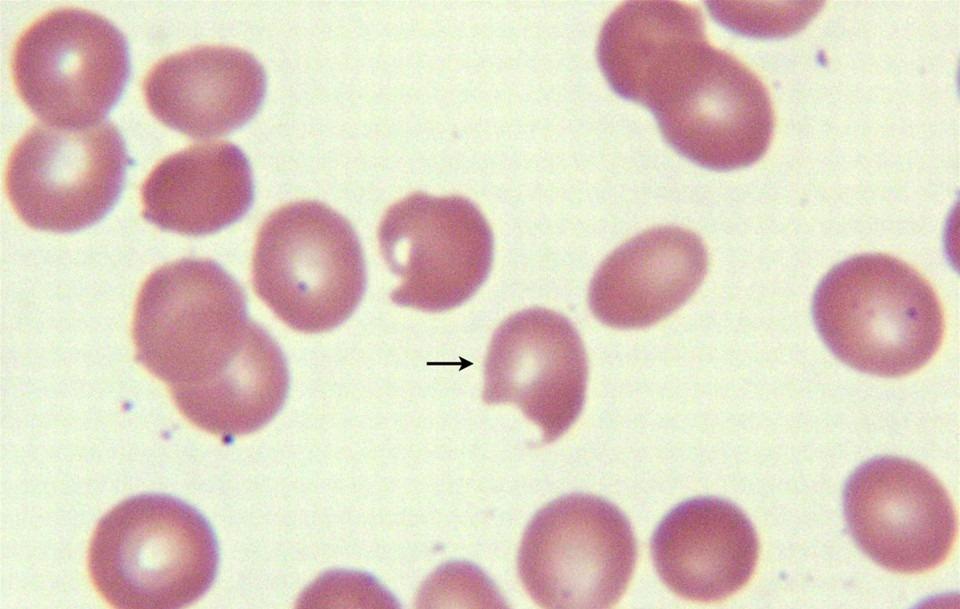 Пойкилоцитоз в анализе крови - причины, решение проблемы