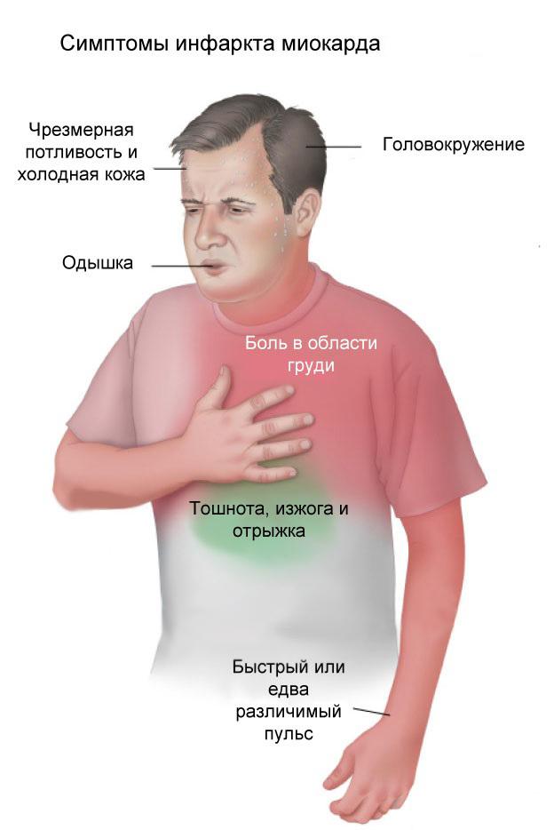 Что такое инфаркт миокарда — 3 причины и симптомы им