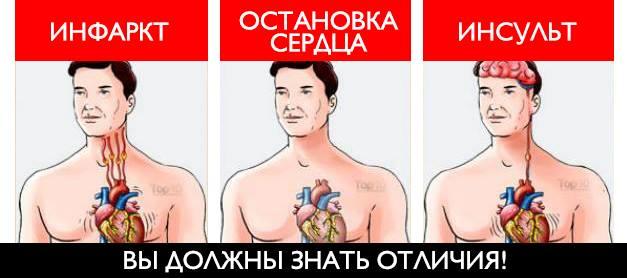 Инсульт инфаркт отличия