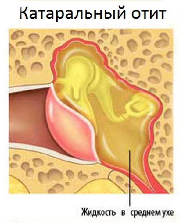 Что такое отит: воспаление среднего уха, симптомы, виды и лечение