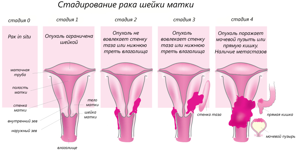 Бешенство матки: симптомы и причины, лечение