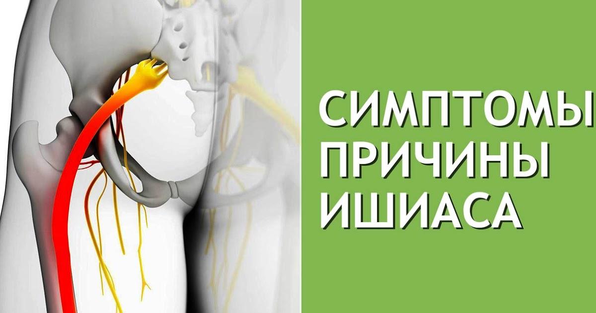 Люмбаго с ишиасом что это такое, а также симптомы и лечение недуга, диагностика болезни и лечение осложненное грыжей.