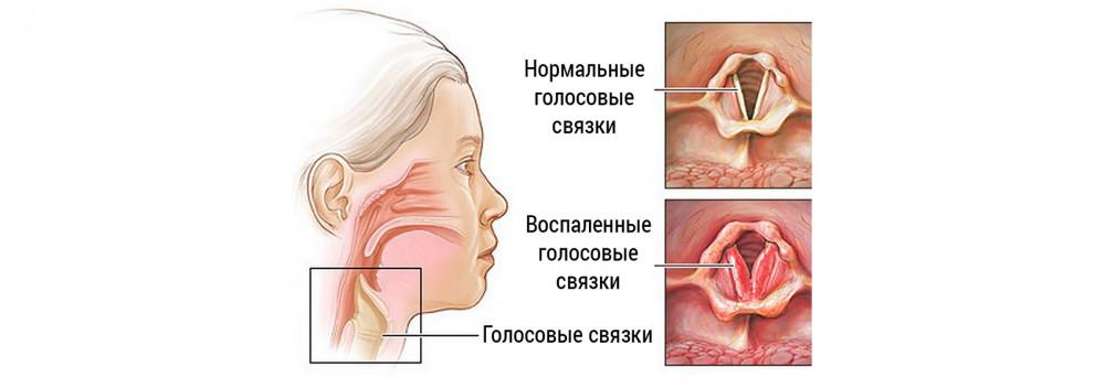 Ларингит: причины, симптомы, лечение, прогноз