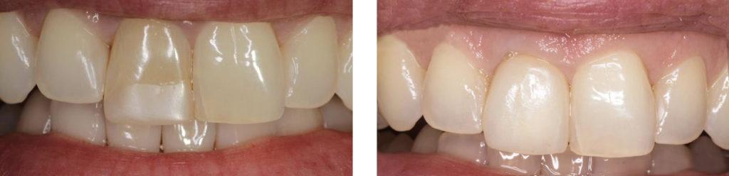 Зубные протезы: какие бывают и какие лучше, цены, материалы