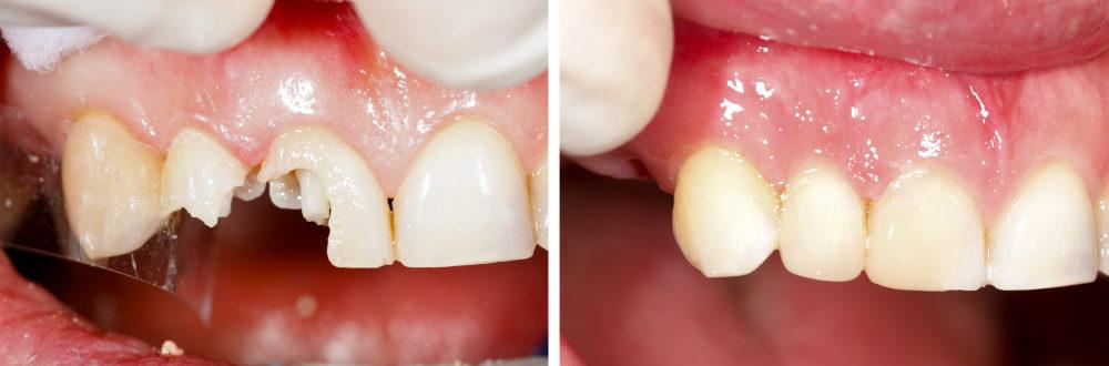 Пломбирование зубов гуттаперчевыми штифтами лечение, недостатки и плюсы