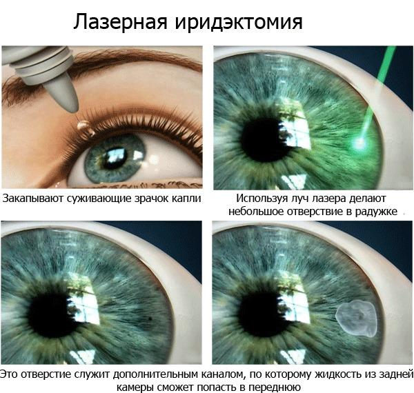 Глаукома - что это такое, причины и симптомы заболевания, диагностика на ранних стадиях, методы лечения и профилактики