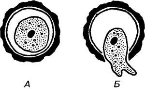 Чем опасно и как лечиться, если в анализах обнаружены цисты лямблий