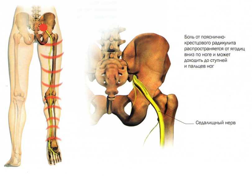 Что такое люмбоишиалгия и как ее лечить?