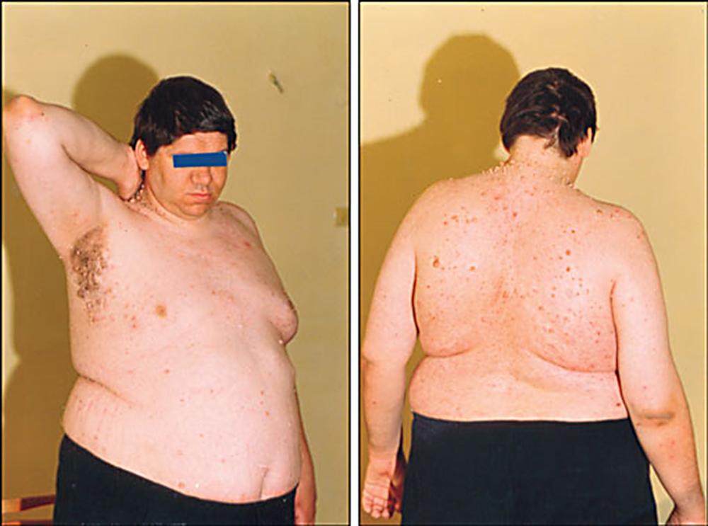 Менопауза у женщин: что это такое, причины, симптомы, лечение