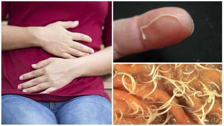 Гельминты (глисты). виды гельминтозов, описание и схемы лечений.