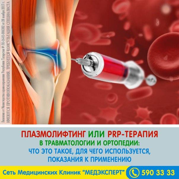 Инструкция по применению prp при остеоартрите