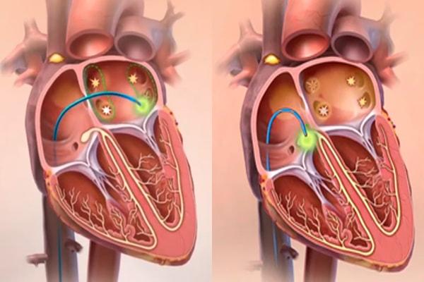 Радиочастотная абляция сердца (рча): отзывы, стоимость, видео прижигания и операции