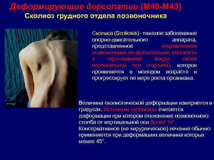 Дорсопатия грудного отдела: отличия отостеохондроза