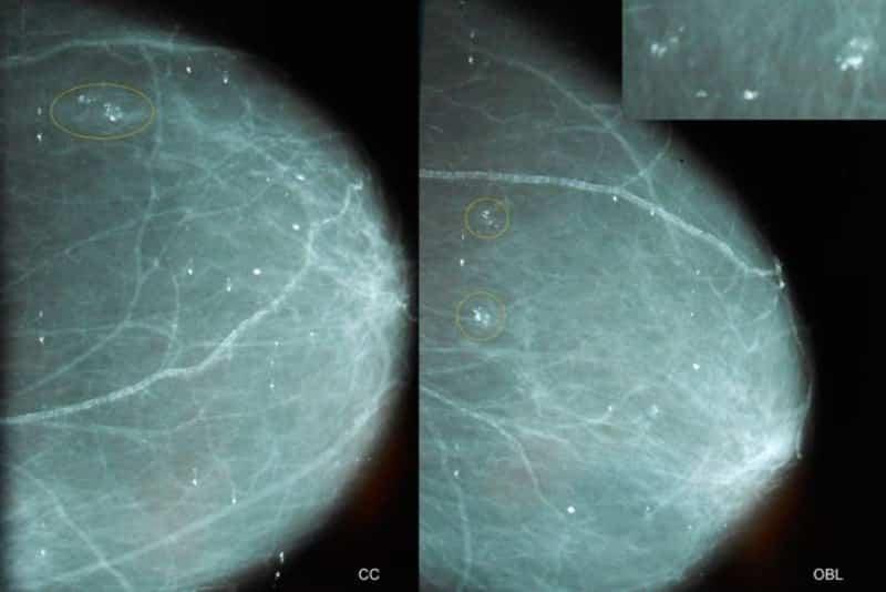 Микрокальцинаты в молочной железе: виды, признаки и лечение