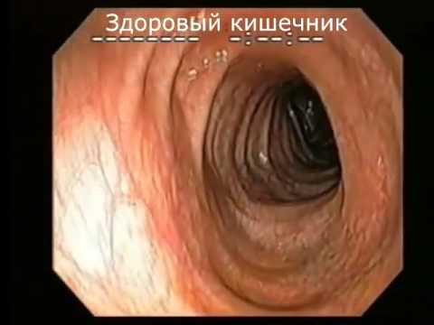 Сегментная кишка что это такое - помощь доктора