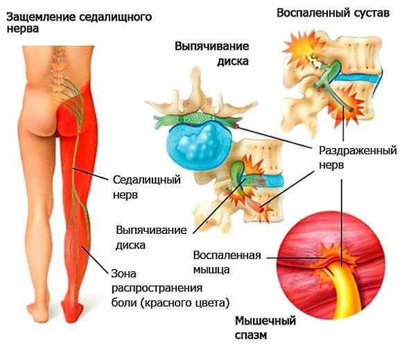Ишиас – симптомы и лечение в домашних условиях