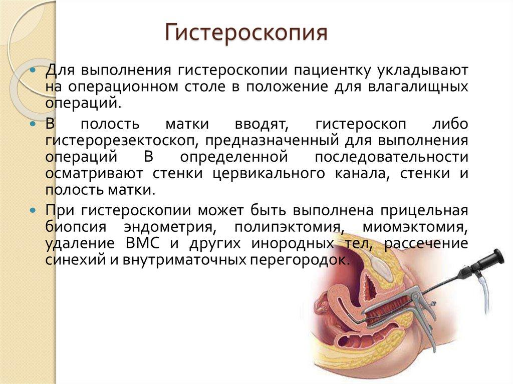 Гистероскопия матки: виды, подготовка, проведение, отзывы о процедуре