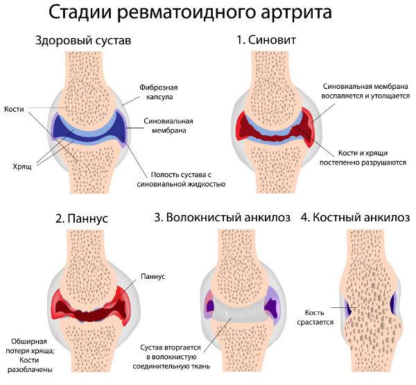 Серопозитивный ревматоидный артрит: симптомы и лечение