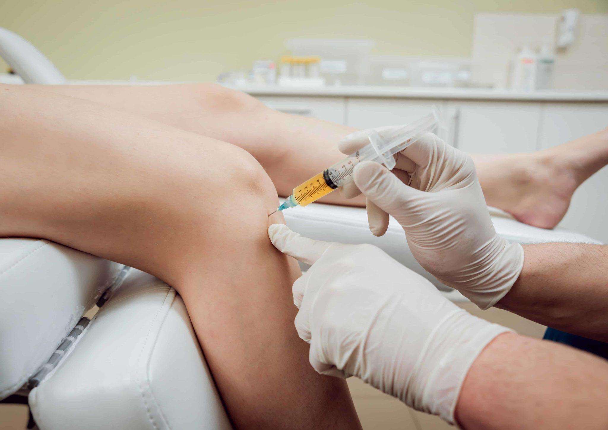 Лечение плазмой (prp-терапия)