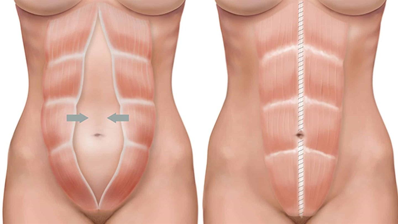Диастаз после родов: 100 фото и видео методов лечения прямых мышц живота