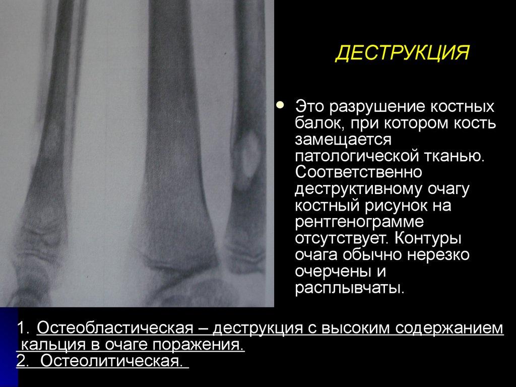 Деструкция стекловидного тела: формы, симптомы и способы лечения