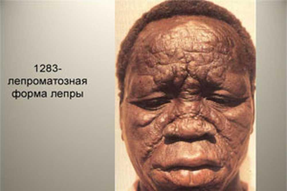 Лепра (проказа) - страшная и мучительная болезнь из средневековья.