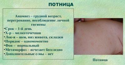 Потница у взрослых — фото, симптомы и лечение потницы