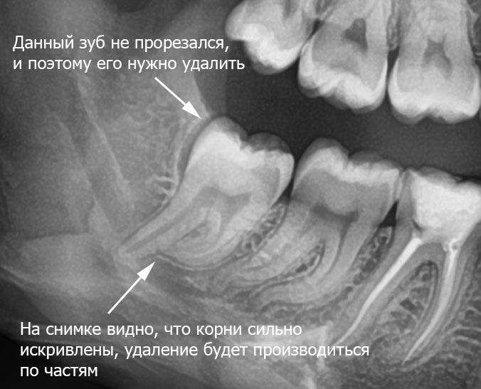 Ретинированный зуб, что это такое и нужно ли лечить?
