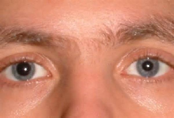 Анизокория — что это такое? - неврологияonline