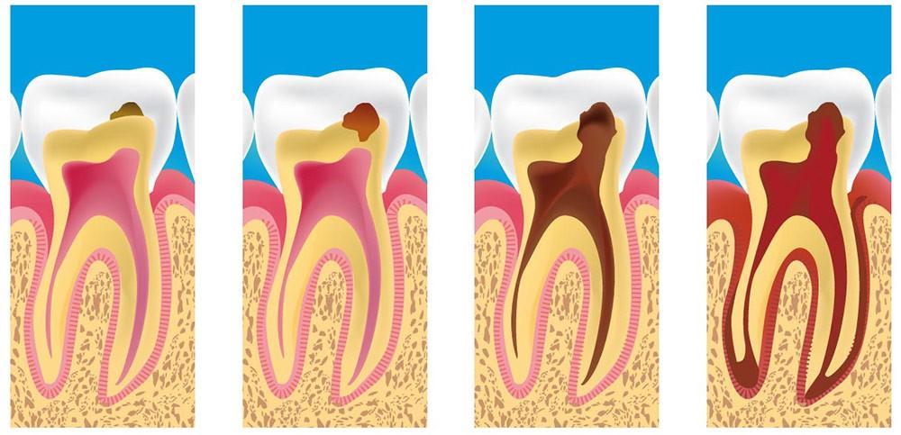 Пульпит зуба: симптомы, причины, диагностика | гид по стоматологии