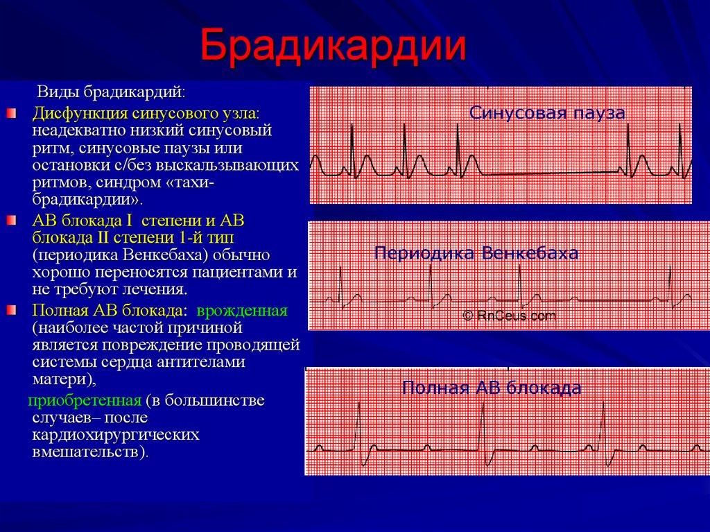 Причины брадикардии сердца: от чего бывает снижение ритма у взрослых мужчин и женщин? лечение нарушения при тренированности и возникновении осложнений