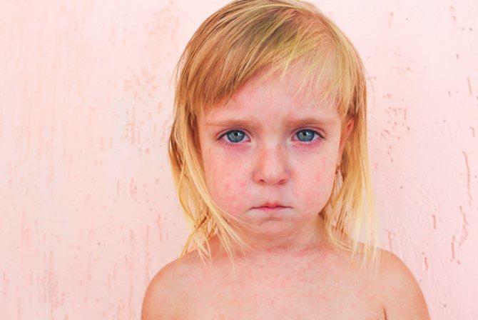Розеола у детей (внезапная экзантема): симптомы, фото