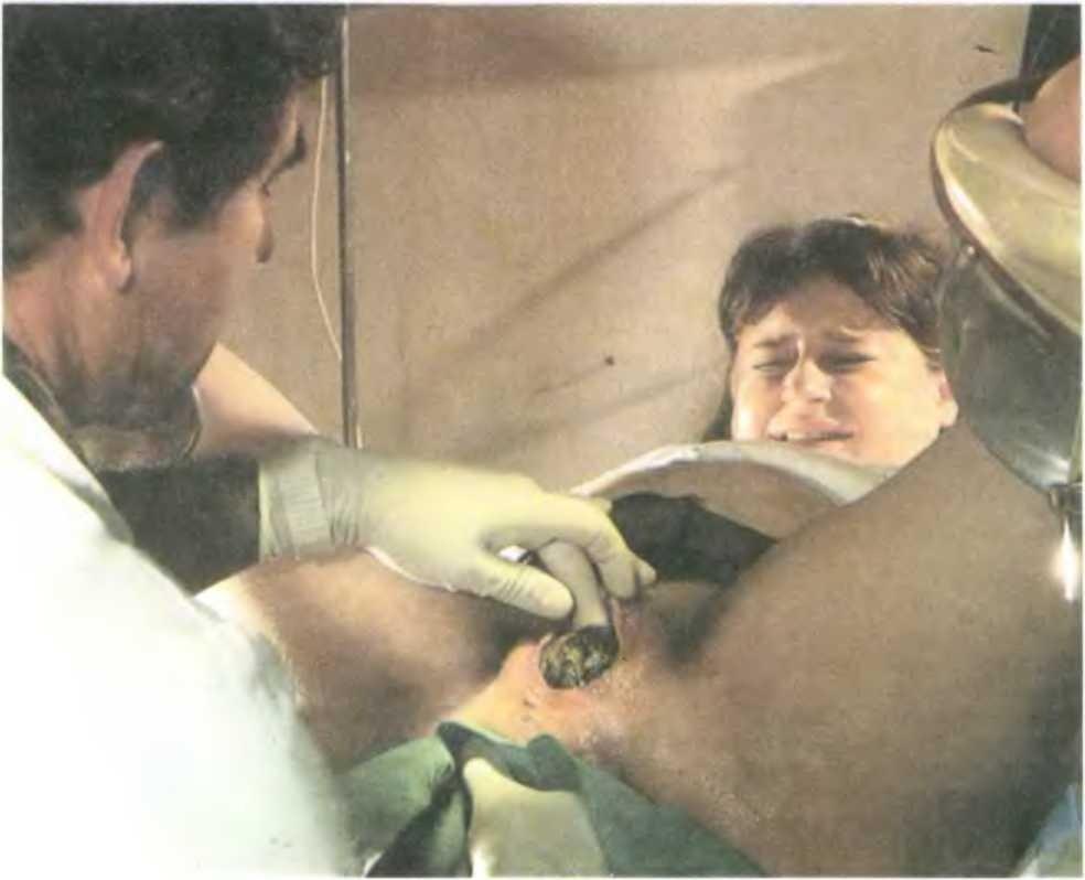 Эпизиотомия: вред или польза