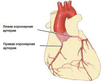 Шунтирование сердца — что это такое
