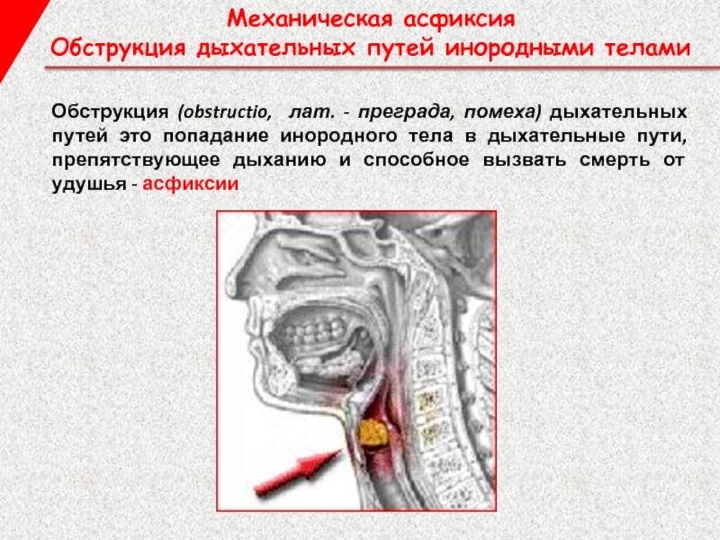 Что такое обструкция дыхательных путей? понятие, причины, симптомы, диагностика и необходимое лечение